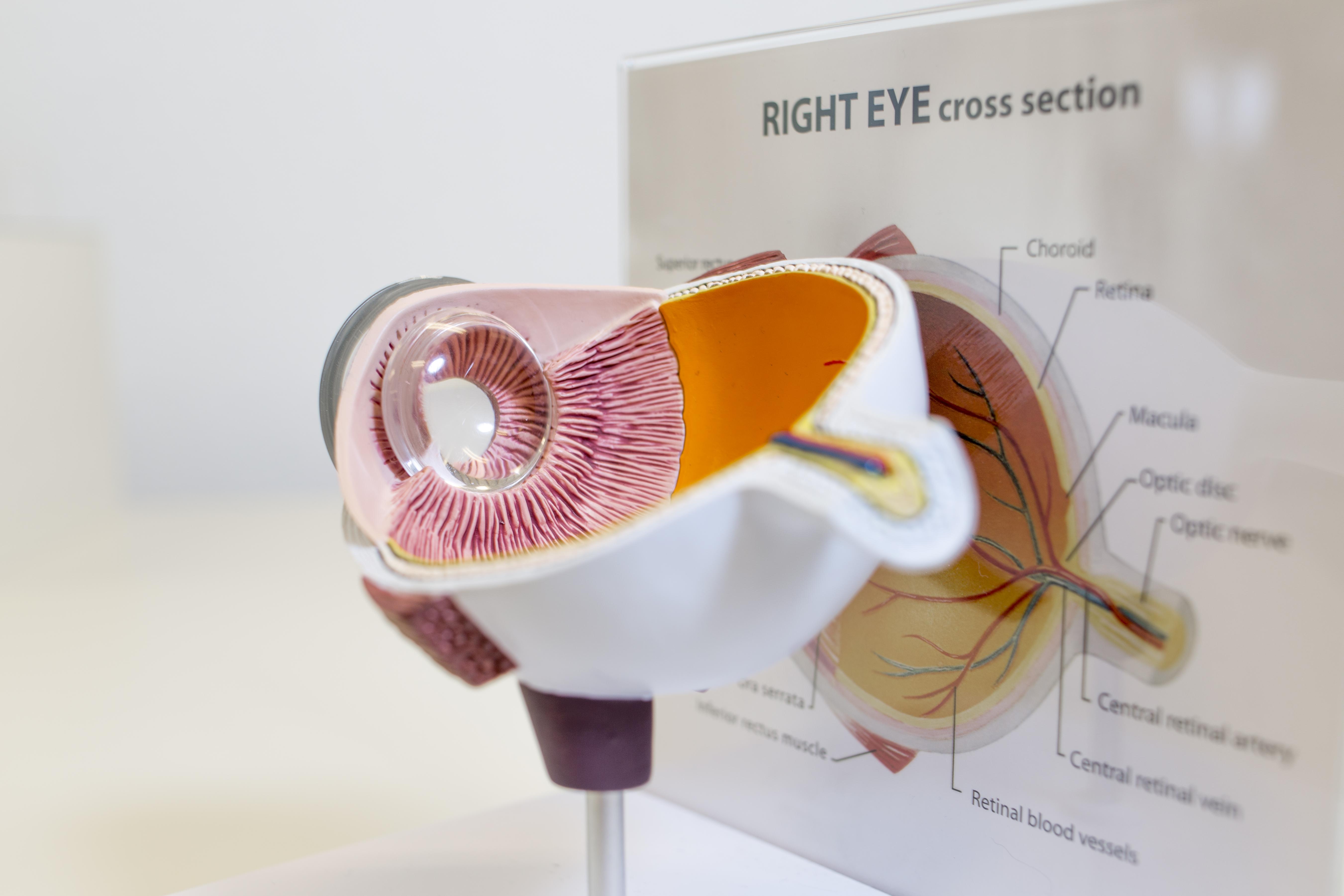 Augenmigräne