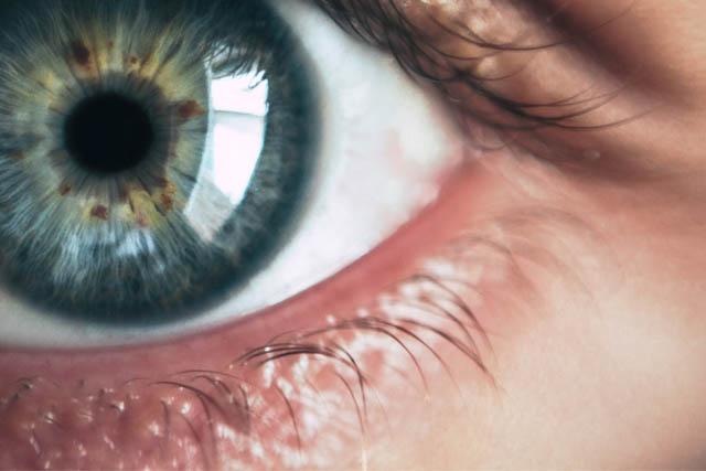 AugenCener-Selde-gesunde-Augen-Teaser