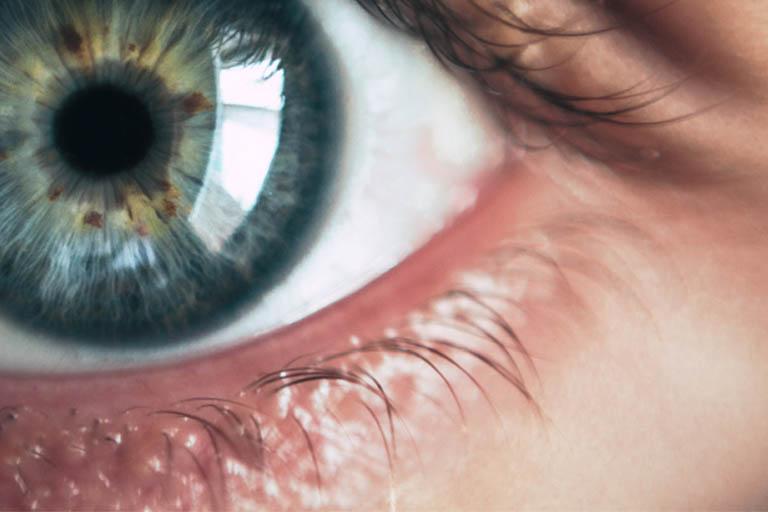 AugenCener-Selde-gesunde-Augen