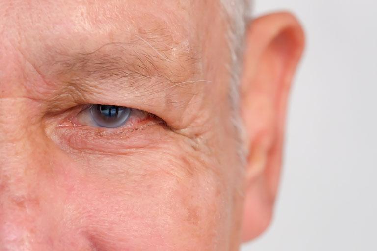 AugenCenter-Selde-Gruener-Star-Glaukon